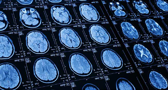 Artificial Intelligence: Finding Meaning in the Data – WebMD