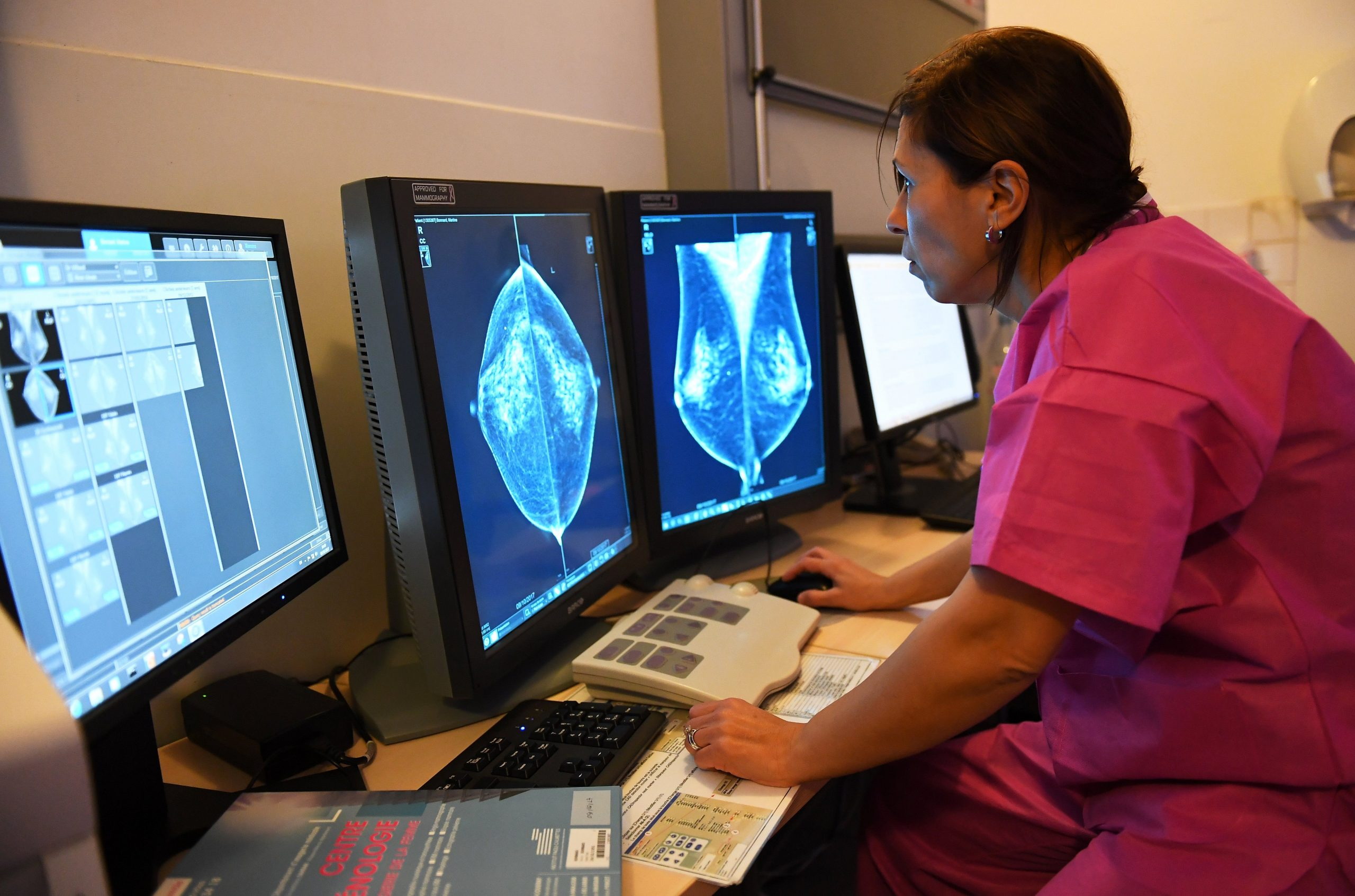 Artificial Intelligence Outperforms Doctors in Breast Cancer Diagnosis – Observer
