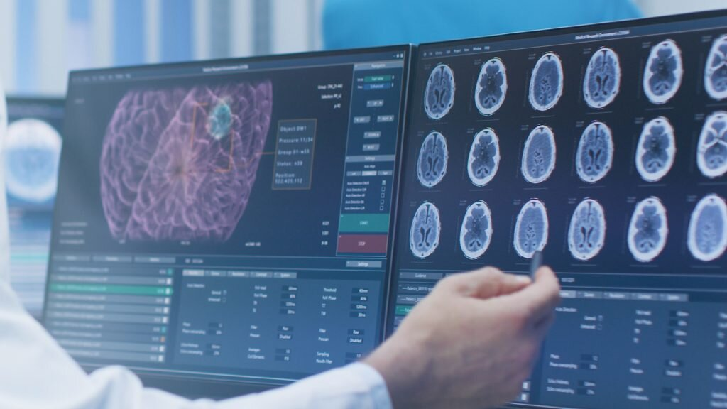 AI Can Now Identify Brain Injuries – AI Daily