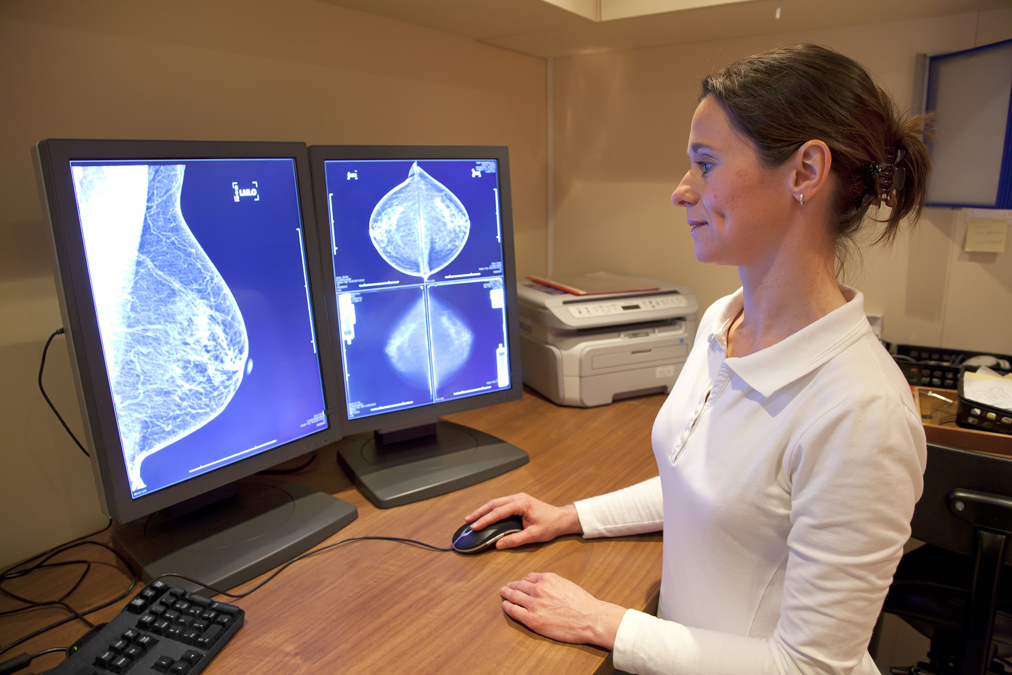 Artificial Intelligence May Potentially Improve Breast Cancer Screening – Genetic Engineering & Biotechnology News