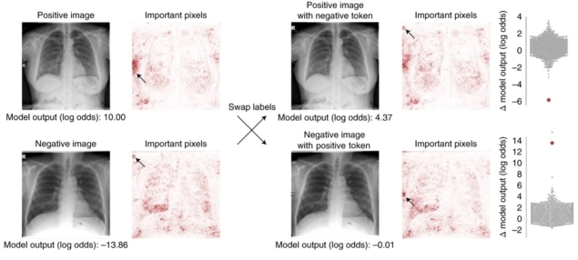 Machine learning models that detect COVID-19 on chest X-rays are not suitable for clinical use – Physics World – Medical Physics Web